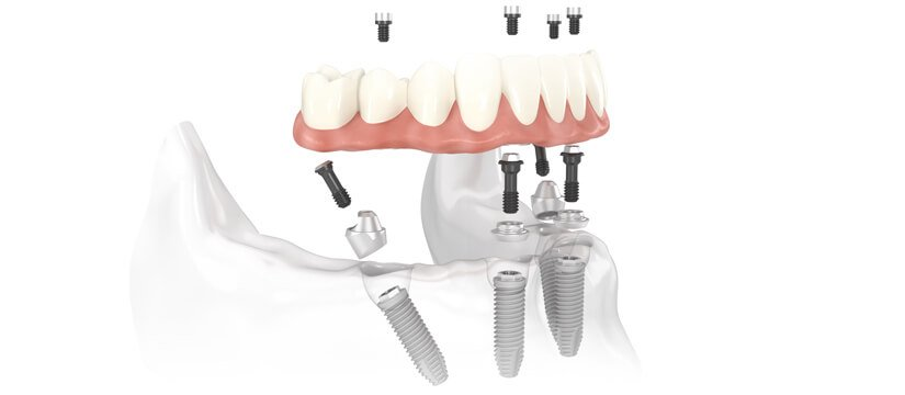 All on Four or Six implants solution