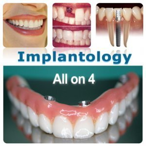 Dentistry Specialities in Implantology Procedures