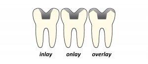 dental Inlay onlay overlay