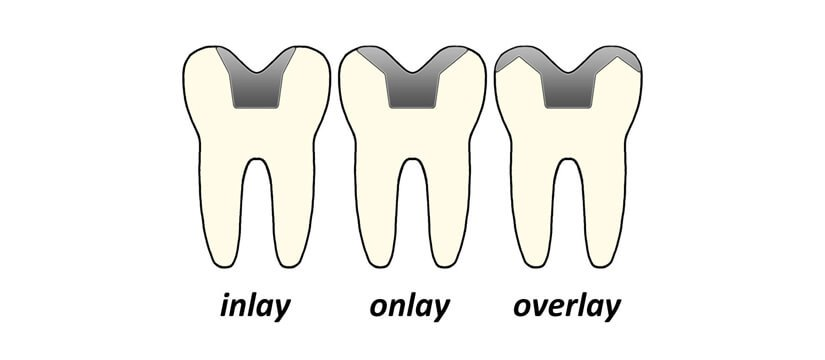 dental Inlay onlay overlay