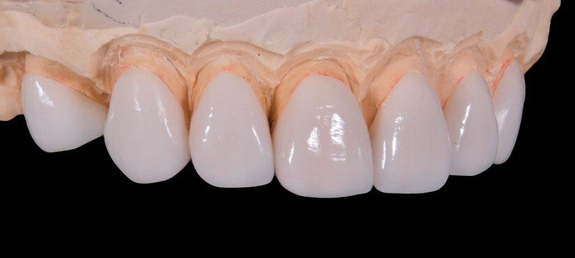 e-max dental metal free ceramics