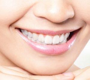 Dental Treatments - teeth whitening