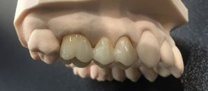 Zirconium Ceramic Tooth Replacement